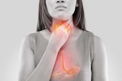 Female experiencing Gastroesophageal (Acid) Reflux