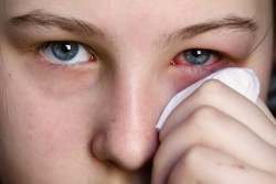 Quick remedies for pink eye