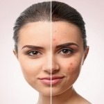 Women with and without acne on her face